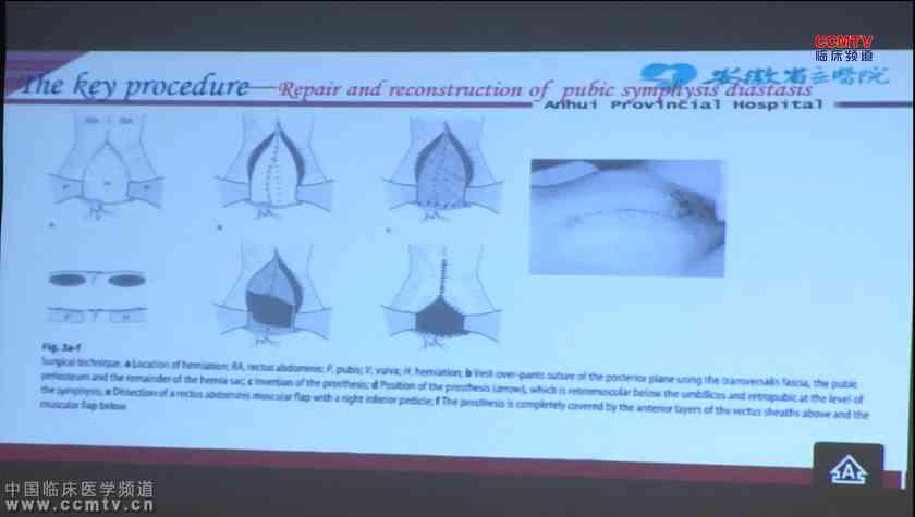 疝气 手术治疗 吴立胜:创伤性耻骨联合分离性耻骨上膀胱疝的补片修补