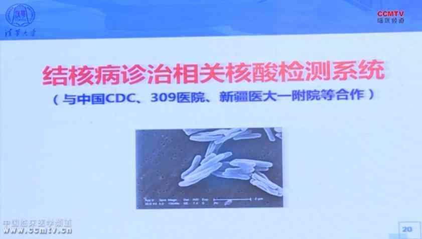 肺病 疾病预防 程京:中西医并重治未、已病
