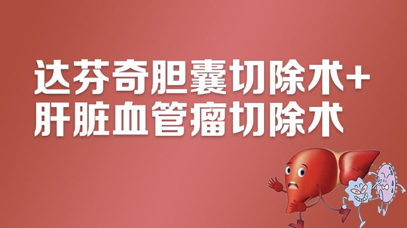 胆囊切除 肝脏血管瘤 达芬奇胆囊切除术+肝脏血管瘤切除术