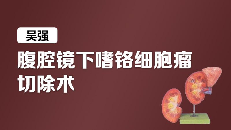 嗜铬细胞瘤 腹腔镜 吴强:腹腔镜下嗜铬细胞瘤切除术