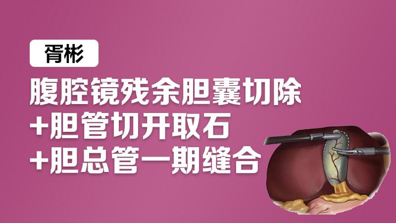 胥彬:腹腔镜残余胆囊切除+胆管切开取石+胆总管一期缝合