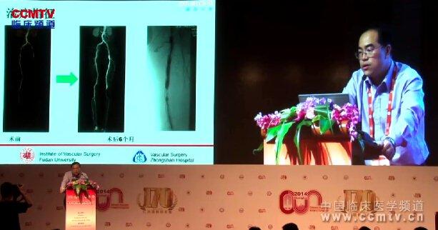 血管病 外科讲坛 动脉闭塞 腔内治疗 史振宇:股浅动脉长段闭塞性病变腔内治疗策略