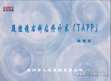 连彦军:腹腔镜右斜疝修补术(TAPP)