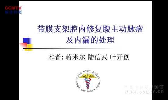 陆信武:腔内治疗腹主动脉瘤及内漏的处理(含讲解)