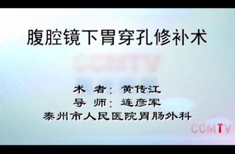 黄传江:腹腔镜下胃穿孔修补术