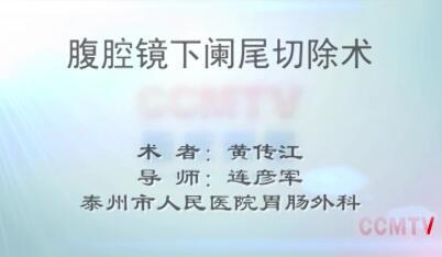 黄传江:腹腔镜下阑尾切除术