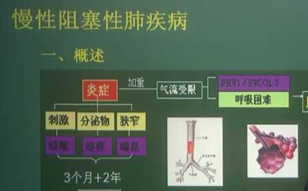 呼吸系统:慢阻肺(一)