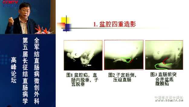 消化道疾病 外科讲坛 便秘 微创 手助腹腔镜 刘宝华:手助腹腔镜全结肠切除治疗慢传输型便秘