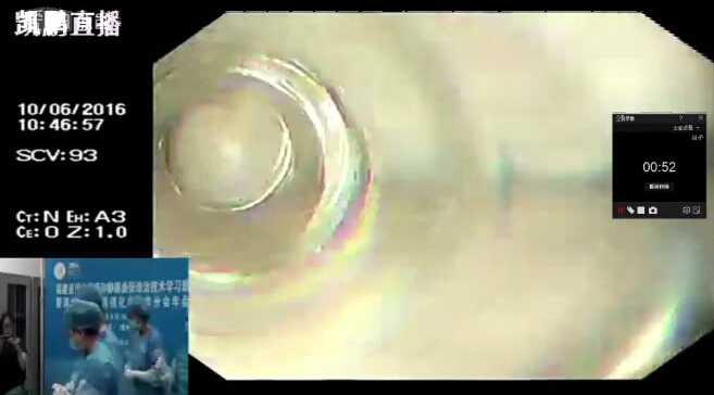 胆系疾病 手术 微创 NOTES 内镜 胆结石 刘冰熔:经直肠通路NOTES保胆取石