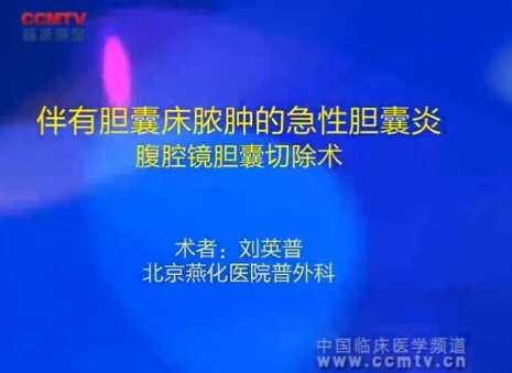 刘英普:伴有胆囊床脓肿的急性胆囊炎腹腔镜胆囊切除术