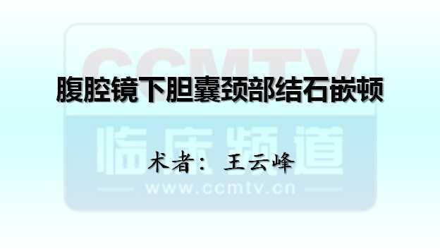 王云峰:腹腔镜下胆囊颈部结石嵌顿