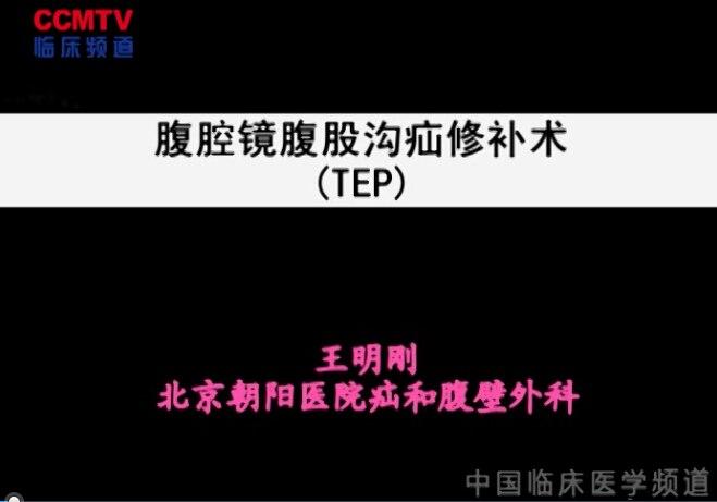 王明刚:腹腔镜腹股沟疝修补术(TEP)