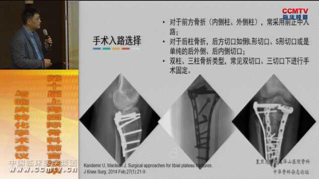 骨病 外科讲坛 膝关节 诊疗策略 胫骨平台   陈文钧:胫骨平台后方骨折治疗策略的三维观